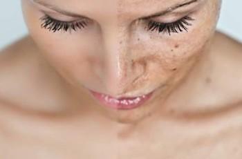 Os altos riscos do fumo para a pele