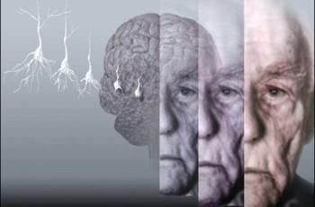 Uso de drogas aumenta chances para Mal de Parkinson