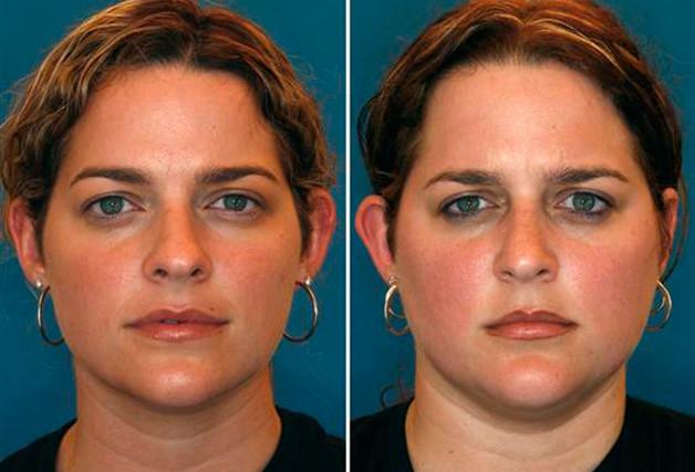 O fumo, o envelhecimento e a degradação da pele